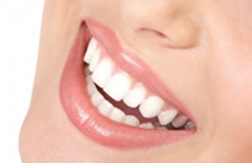 Reazioni avverse da utilizzo di sbiancanti dentali. La UE chiede al CED di monitorare